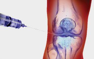 Замена сустава колена барнаул